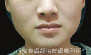 除皺瘦臉針治療後(實際效果因個案而異)