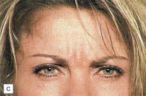 1.會將眉毛向內與向下拉,並在皮膚表面形成垂直走向或斜向的皺紋。