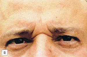 2.將內側眉毛往下拉,並在皮膚形成橫向皺紋。