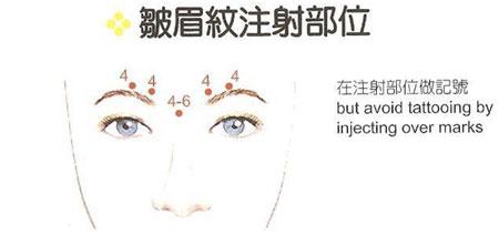 除皺瘦臉針注射除皺法:在適當入針處注射