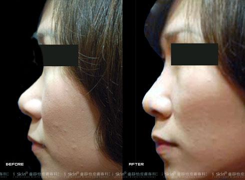 (右)玻尿酸鼻形重塑(實際效果因個案而異)