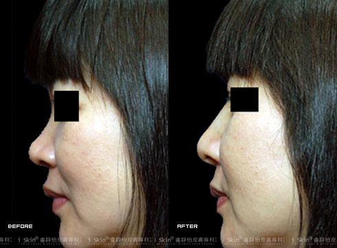 (右)微晶瓷鼻形重塑後(實際效果因個案而異)