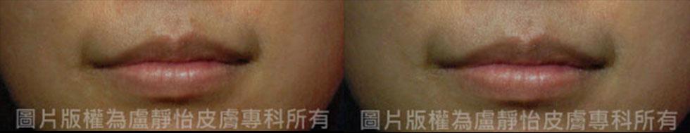 (左)治療前  (右)脈衝光加導入一次(實際效果因個案而異)