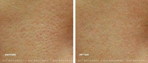 果酸換膚治療後(實際效果因個案而異)
