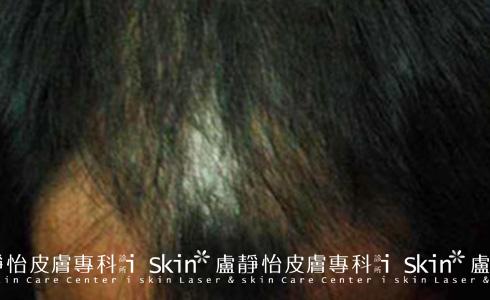 微創雷射生髮治療後