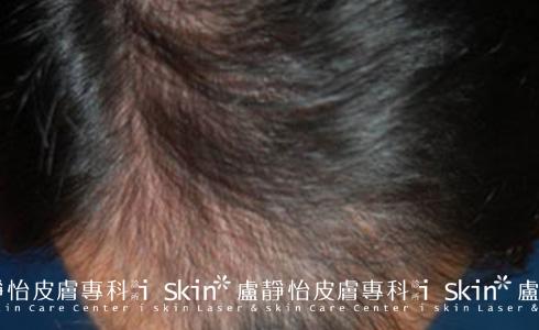 微創雷射生髮治療前