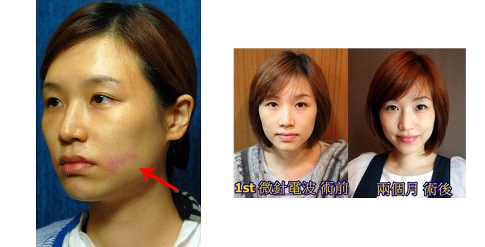 自從接受盧靜怡醫師的微針電波治療後,我從U字臉大媽,變成超級V字小顏女!
