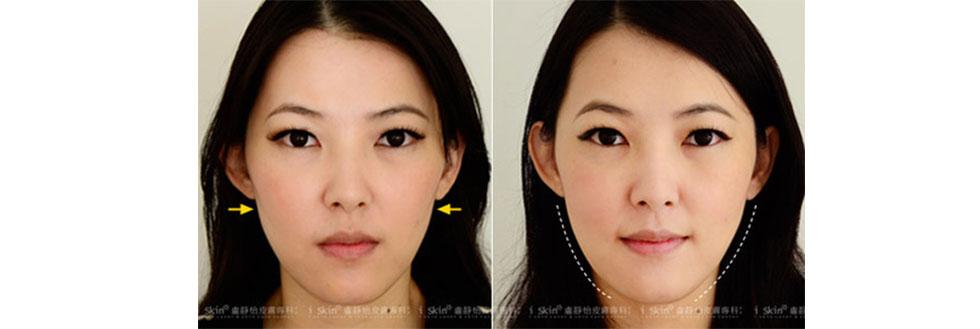 (圖來看Ivy術前術後的比較吧!左圖術前臉頰較凹,右圖注射後臉頰圓潤飽滿,以前的陰影和淚溝都不見了耶)