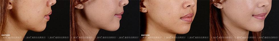 側臉下巴線條微微前翹,呈現完美角度▲ 漂亮、自然的下巴線條