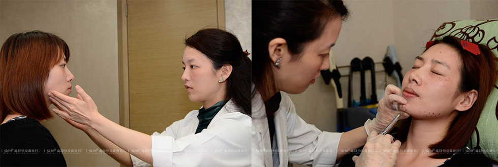 針對雙頰過度發達的咀嚼肌,則選擇肉毒桿菌注射、雕塑V型小臉 ▲注射玻尿酸前局部敷上麻藥後,蔡依倫醫師便著手進行注射