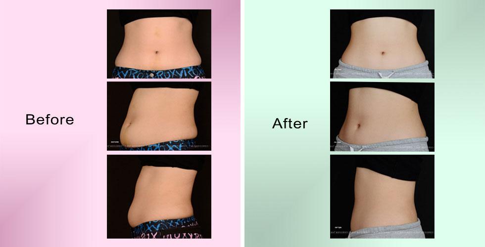 圖為L小姐術前,與右圖經過立塑Liposonix聚焦音波雕塑後一個月,腹部雕塑後緊實平坦。 立塑Liposonix 聚焦音波治療腰腹部位後,腰部曲線立現腹部也平坦緊實。