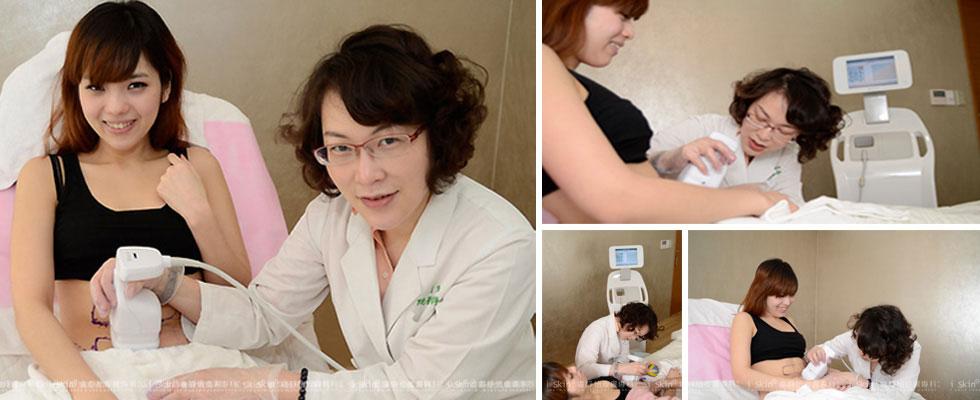 Liposonix立塑聚焦音波,利用超音波高強度的聚焦,破壞皮下脂肪細胞立塑,採用免動刀方式的破壞脂肪細胞!。