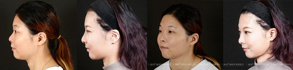 本來小眼、塌鼻,長相並不出眾的珊珊,變成了擁有精緻臉蛋的美女,五官立體度明顯提升。