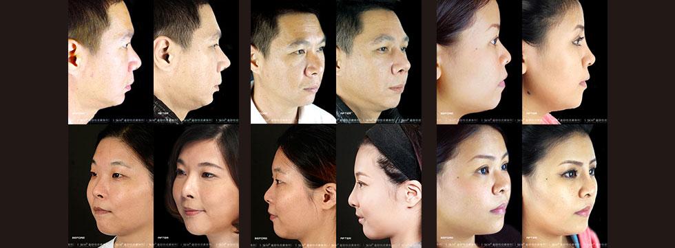 胡岱霖醫師指出,其實亞洲不少人有五官扁平的問題,許多人的狀況可以透過簡單的整形手術改善。如果不想動刀,也可以採用如電波拉皮、玻尿酸注射等微整形的方式,微調臉型達到瘦小臉、讓五官立體的效果。