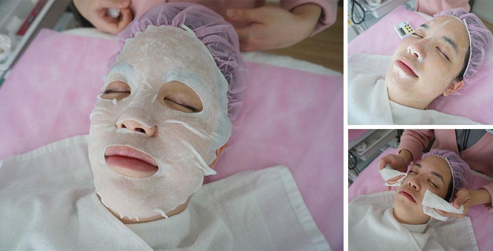 艾地苯換膚後,美容師再為W小姐,做細緻按摩滋養皮膚,並紓緩修護皮脂膜再敷上鎮靜保溼面膜