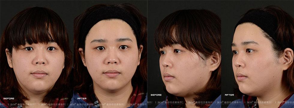 原本Mag臉部膚色黯沉,還有著痘疤、血管、青筋,即使那些血管、青筋如絲般細小,也能影響整張臉的美觀,它們讓Mag看起來無神又疲累;不過,當Mag在iSkin盧靜怡皮膚專科診所,接受藍爵雷射治療後,不僅血管、青筋、痘疤明顯淡化,連肌膚也因為拉提效果,變得彈性又緊緻,這種成果讓Mag又驚又喜❤