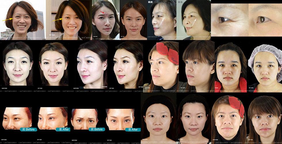 其他除皺瘦臉針注射見證
