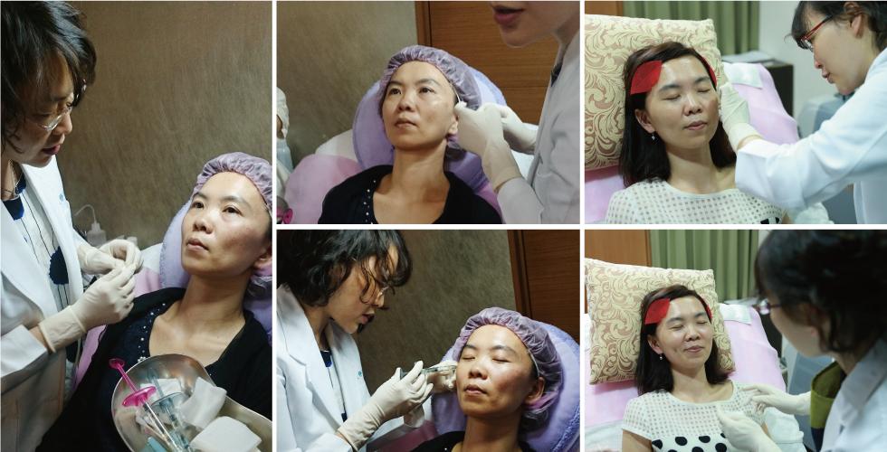 經過兩次療程,雙頰不似以往那麼凹陷了。