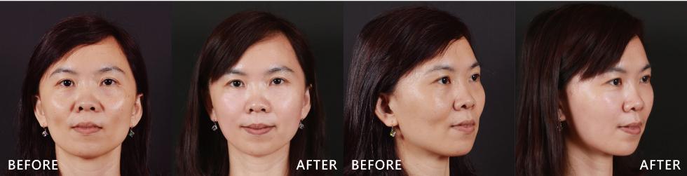 中臉部位顯得飽滿許多,年輕感更為凸顯。
