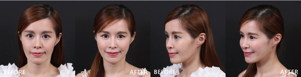 玻尿酸作中臉提拉,輔以音波拉提全臉作用,效果顯而易見。