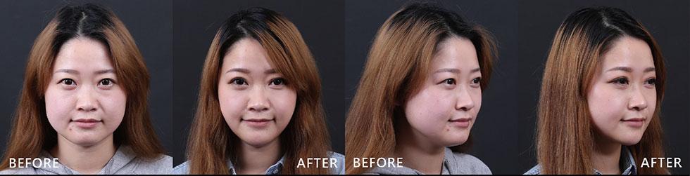 下巴與兩側咀嚼肌順利GET,小臉任務達成。