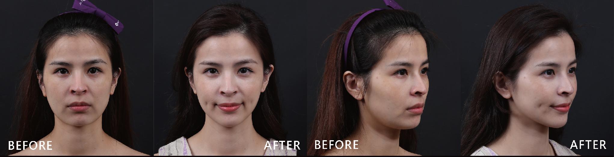 音波能有效刺激膠原蛋白增生,讓肌膚充滿Q彈的能量,並且能深層拉提,緊實有效。