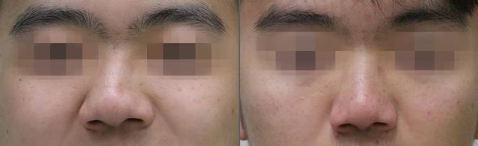 (左)術前,明顯鼻形歪斜。(右)術後一個月,歪斜的鼻子置中,兩邊鼻子對稱自然,同時塞鼻也明顯改善。手術造成的腫脹、不適幾乎消失,恢復良好。