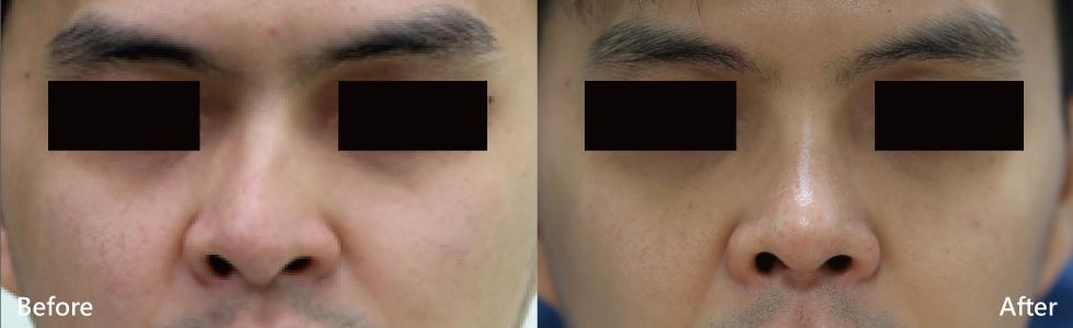 (左)術前,鼻部歪斜明顯。(右)術後一個月,恢復良好,原本歪斜的鼻部挺立筆直,兩邊鼻孔對稱,呼吸也更順暢了。