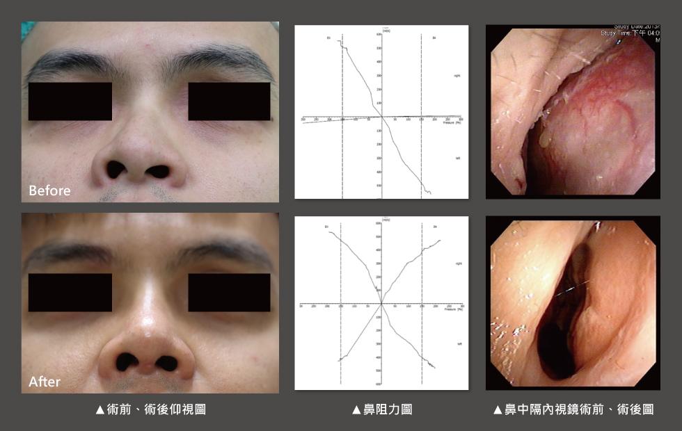 透過手術前後鼻阻力圖對照,術前右側鼻阻力線都接近水平線,表示呼吸阻力極大,術後鼻阻力線恢復正常曲線,接近兩邊對稱,表示呼吸恢復暢通,傷口也恢復良好。