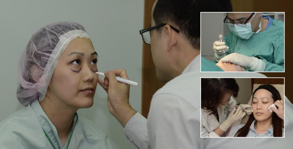 看到胡醫師幫我標記位置,發現自己眼袋淚溝問題那麼嚴重!