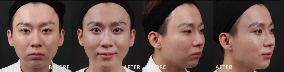 尤其在看到術前術後對比,我超喜歡、超滿意盧院長幫我量身打造的全臉線條及局部精雕。