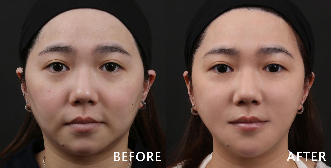 兩頰泛紅及黯沉膚況,頰編班點問題,同時使膚色均勻,看起來更顯明亮。