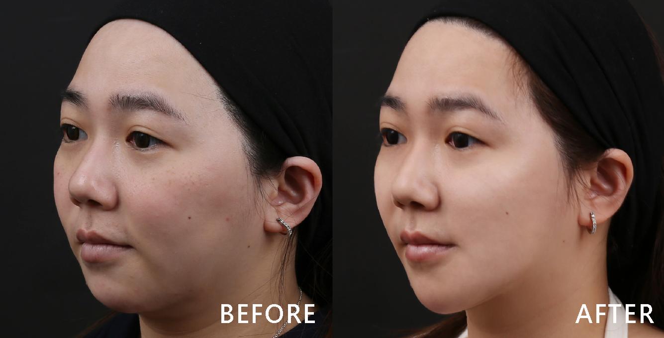 改善臉部凹陷後看起來更有精神,臉部比例更協調!(效果因個案而異)