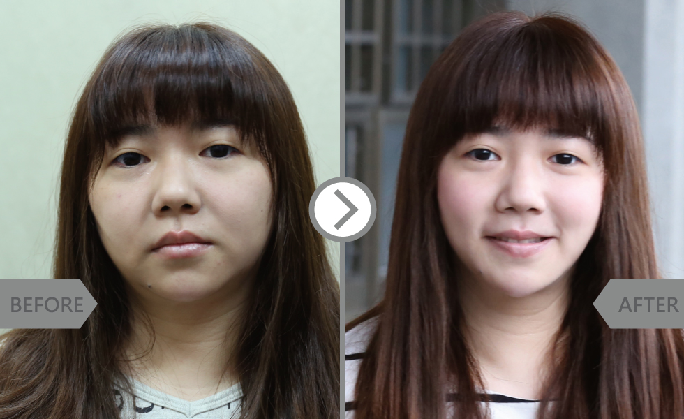直接上圖,有做有差呢!斑點、鬆弛問題整個改善,原本的短下巴拉長,讓臉型比例變好看。