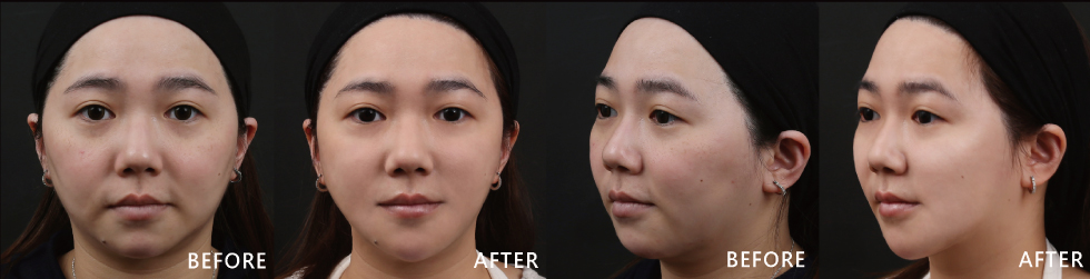 原本下顎線條超不明顯,看起來更肥短。打了除皺瘦臉針後,不管從側邊或正面看線條很分明,臉型藉由玻尿酸治療後,擺脫鬆弛垂老的感覺,變得年輕,臉看起來更小,打完4D皮秒雷射後膚色明顯白一階。