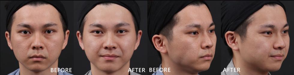 年輕時痘痘狂長,自己又不懂保養,亂摳亂擠導致臉頰留下明顯的凹洞,打完4D皮秒後,凹疤變淺、皮膚暗沉的狀況也改善。