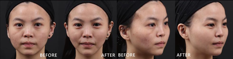 玻尿酸讓我的凹陷的臉頰變得豐潤、明顯的淚溝也不見了!臉型的弧度也修飾得更順,下巴線條也變得更美,蘋果肌也出現了!