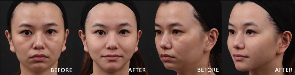 超神奇的,沒做治療前,我都不知道我的臉這麼鬆,而且看起來好類哦。下巴集中夾用玻尿酸、晶亮瓷治療,再利用音波拉皮治療,效果真是不同凡響啊。