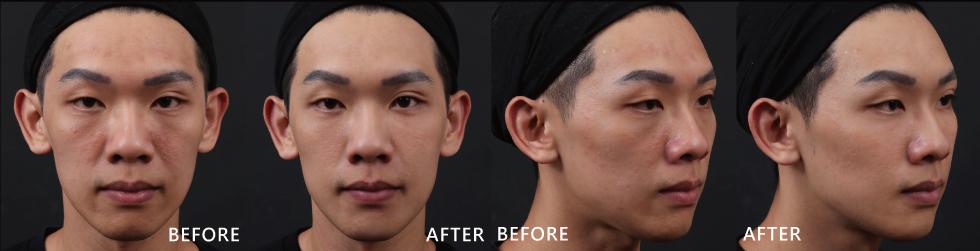 整體膚況啊、皮膚黯沉的狀況都有改善,小瑕疵在透過玻尿酸修飾後,拍照時在臉上完全看不出來,直接Bye!