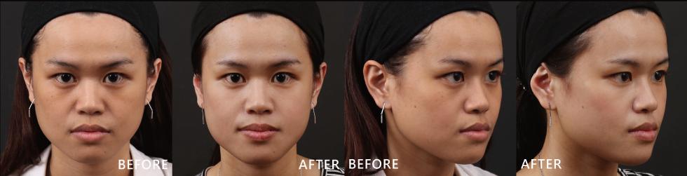 很滿意這次的成果!我發現膚質的乾燥粗糙改善了很多,膚色也變亮了!即使素顏出門也不用遮遮掩掩戴口罩了!超開心的!