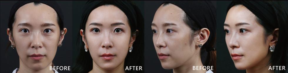 看到了嗎?我對療程的結果超滿意的!打完之後,臉變得比較澎潤、肌膚狀況變得比較好,法令紋變淡了、上粧變得比較快,而且比較服貼!