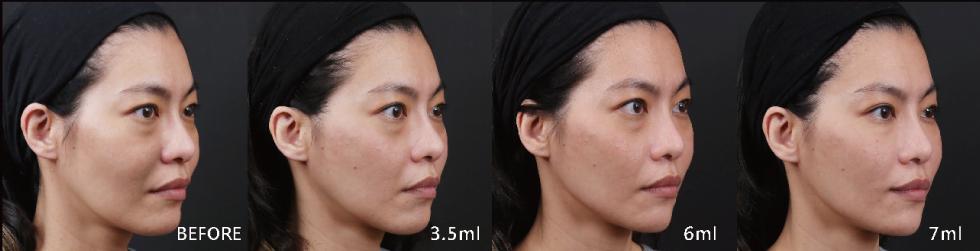 玻尿酸療程分為3.5ml(中頰拉提、法令紋、耳前拉提)、6ml(下巴順修、雕塑)、7ml(淚溝、瞼頰溝、下段法令紋順修)三個階段,幫我立體雕塑、面部支撐、重塑V型輪廓,最後撫平紋路、精緻肌膚光澤!