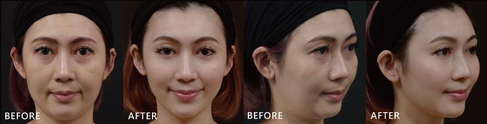 我想定期的來做音波拉皮,讓臉部輪廓變得自然又緊實。
