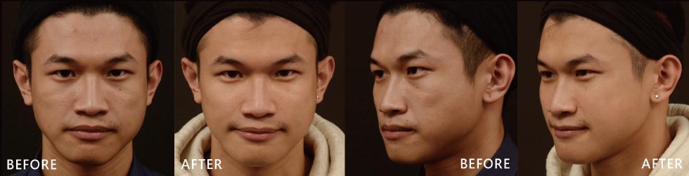 透過玻尿酸填補凹陷,臉部變豐潤,細紋很然地變少了,臉型自然地變對稱了!