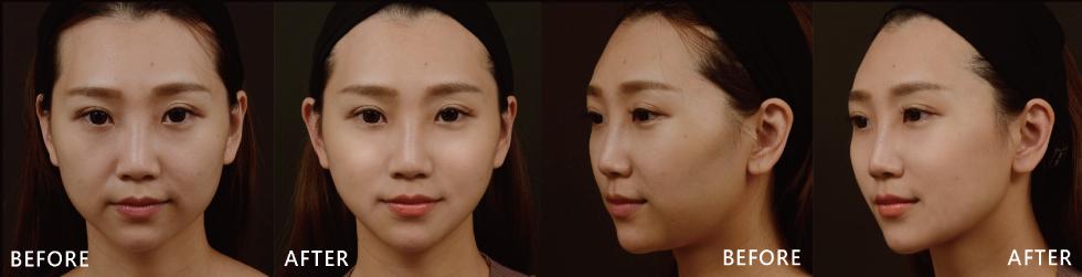 術後不到一個月我的臉部很明顯地感覺被拉提了,因為刺激膠原蛋白增生,膚質也得較好,較容易上妝。