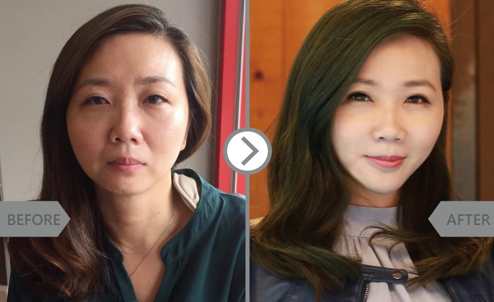 原本自己以為只需改善淚溝及法令紋,但醫師卻用玻尿酸,除了改善原本我在意地的部位,還雕塑唇形與下巴讓整體臉型比例更好了!