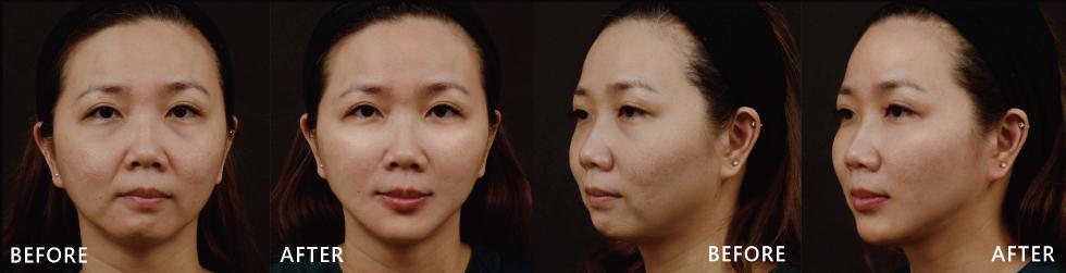 上半臉填補淚溝與夫妻宮,下半臉自然修飾法令紋、嘴唇與下巴,整體臉型比例變好、變得更柔和且有精神。