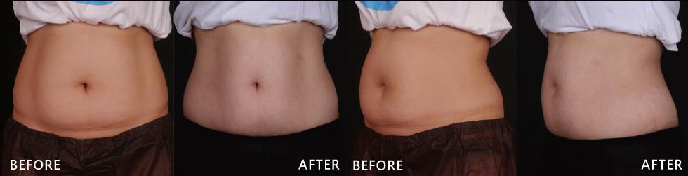 術後一至兩個月就開始覺得褲頭變鬆了,術後第三個月小腹真的超有感地變平很多。