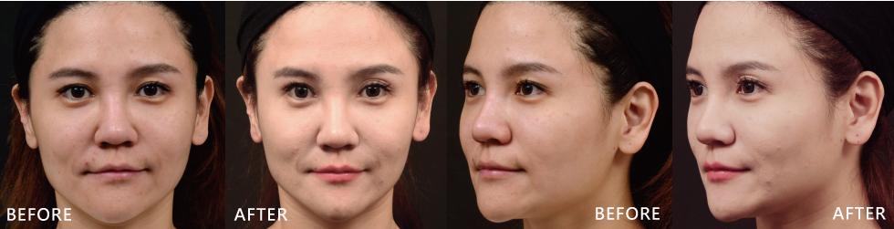 療程一個月後覺得兩頰的線條變明顯了,拍照時驚覺臉變好小好V,下巴變更尖了,角度怎麼拍怎麼好看。