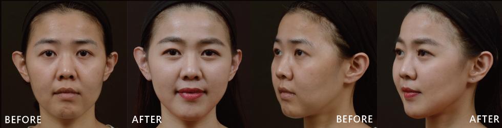 五顆星評價的盧靜怡院長,治療經驗豐富,一下子就看出我的左臉比較大,經盧醫師治療後,兩邊也變的較協調,法令較不明顯而側邊的下顎線也出現了,總體讓我的臉變的更有精神也更立體了。